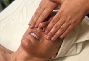Cómo tratar la flacidez facial